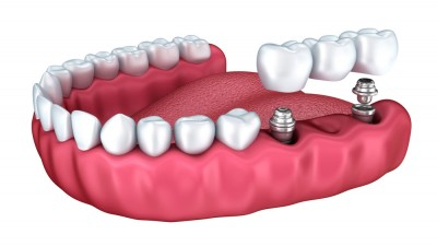 """Implantología oral (II): """"Un implante dental requiere los mismos cuidados que un diente natural"""""""