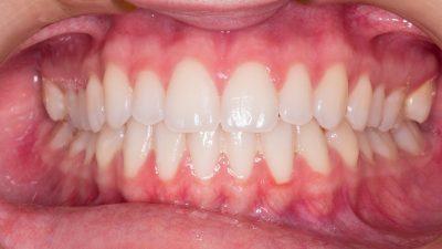 Tengo los dientes apiñados, ¿la ortodoncia me lo puede corregir incluso en la edad adulta?