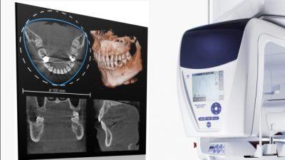 En la Clínica Bayo Martín contamos con un TAC que nos ayudará en los diagnósticos