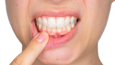 Periodontitis: ¿en qué consiste el tratamiento periodontal?