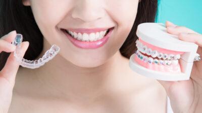 ¿Te vas a hacer un tratamiento de ortodoncia y tienes dudas? Te las aclaramos