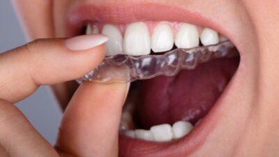 Fase de retención en la ortodoncia. ¡No te la puedes saltar!