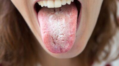 Hongos en la boca: causas, síntomas y tratamiento